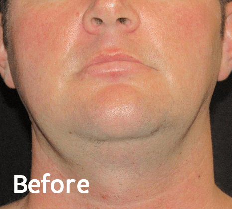 Non-Surgical Mini Face & Necklift - FaceTite Technology