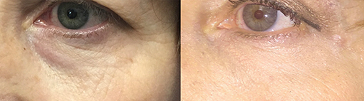 accutite before after photo 1